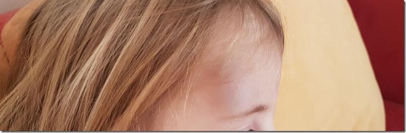 blaue Beule Stirn